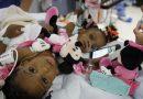 Santé: Deux soeurs siamoises camerounaises opérées avec succès en France
